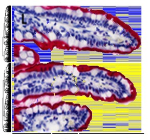 Chronic inflammation alters DNA methylation patterns in the human gut